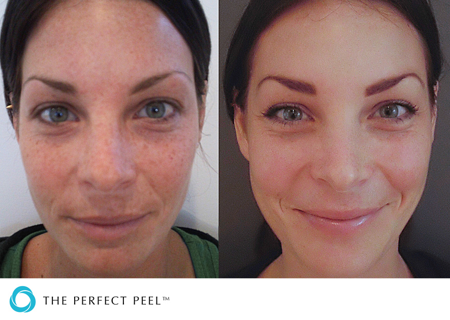The Perfect Peel Omaha Cosmetic Surgery