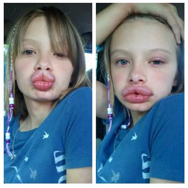 Kylie Jenner Challenge... Omaha Cosmetic Surgery