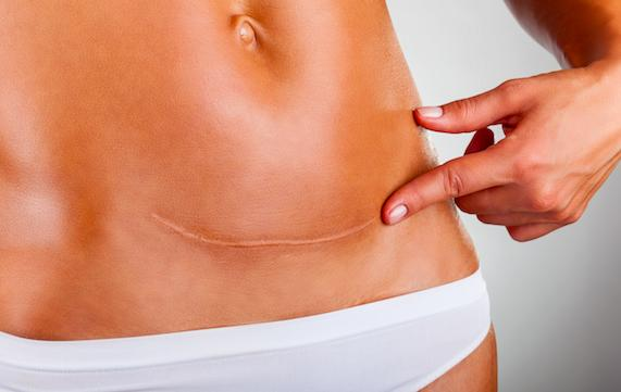 Improving the Appearance of Scars Omaha Cosmetic Surgery