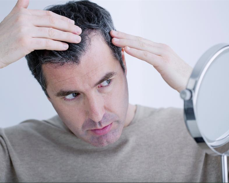 Embarrassed by Hair Loss? Omaha Cosmetic Surgery