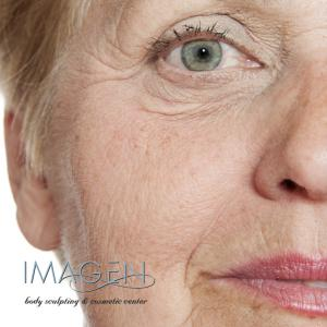 Which Wrinkles Can I Treat with Pearl Fractional Laser? Omaha Cosmetic Surgery
