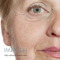 Which Wrinkles Can I Treat with Pearl Fractional Laser?