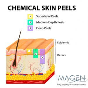 Chemical Peels Omaha Cosmetic Surgery