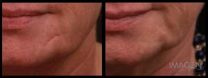 Acne Scar Before & After Omaha Cosmetic Surgery