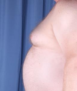 gynecomastia male breast man boob