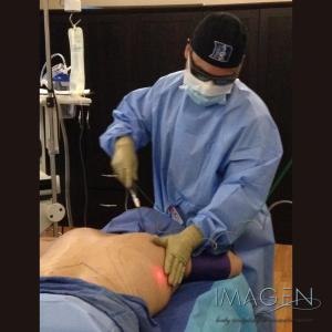 What is Tumescent Liposuction? Omaha Cosmetic Surgery