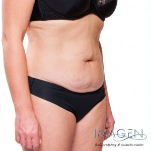 Saggy Skin after CoolSculpting? Omaha Cosmetic Surgery