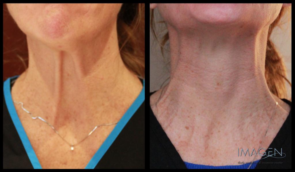 Three Tips for Choosing a Botox Provider Omaha Cosmetic Surgery