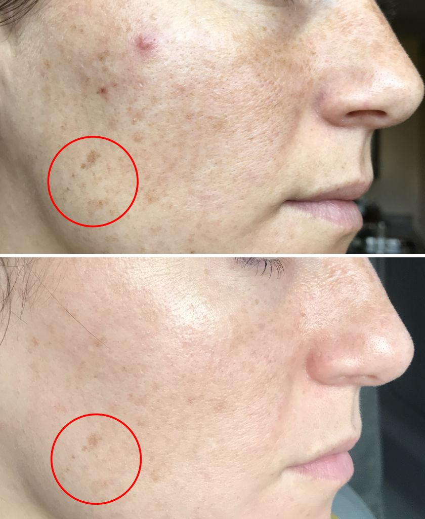 Even Tone & Reduced Appearance of Dark Spots