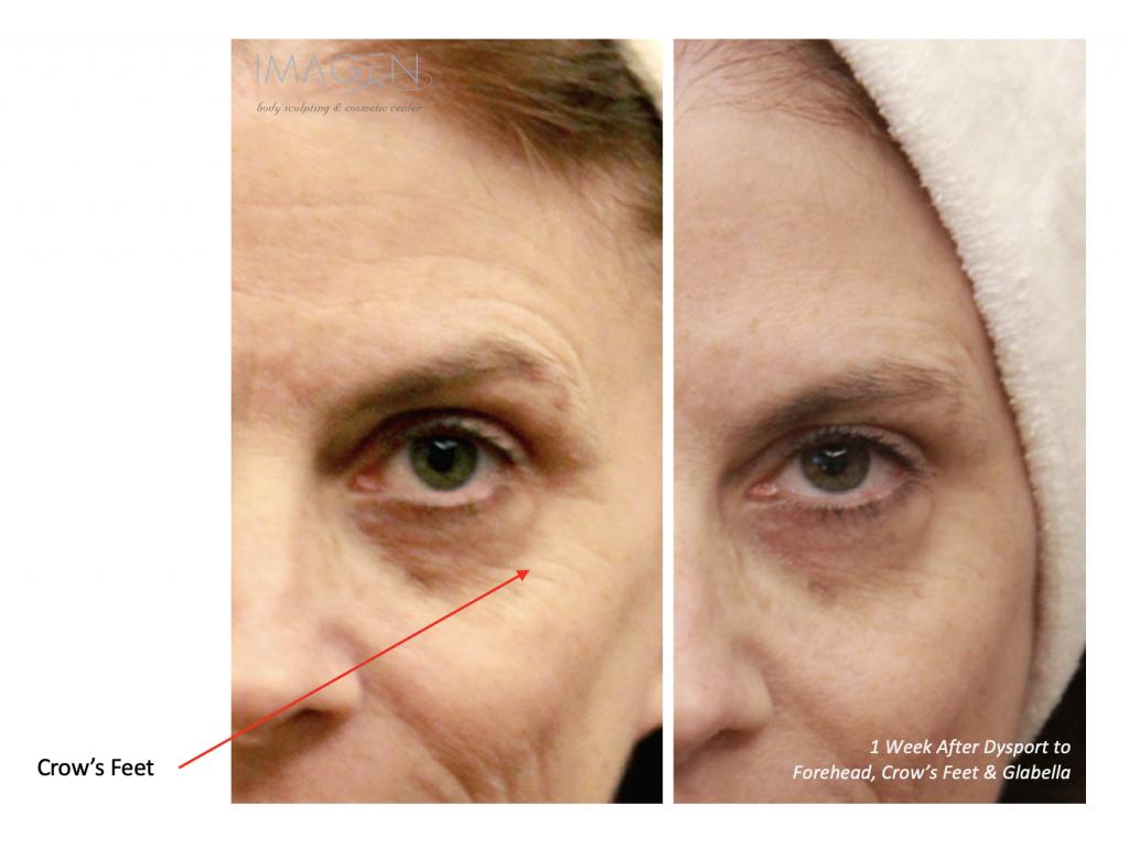 Botox Brow Lift Omaha Cosmetic Surgery