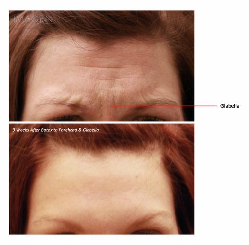 Botox Brow Lift Glabella