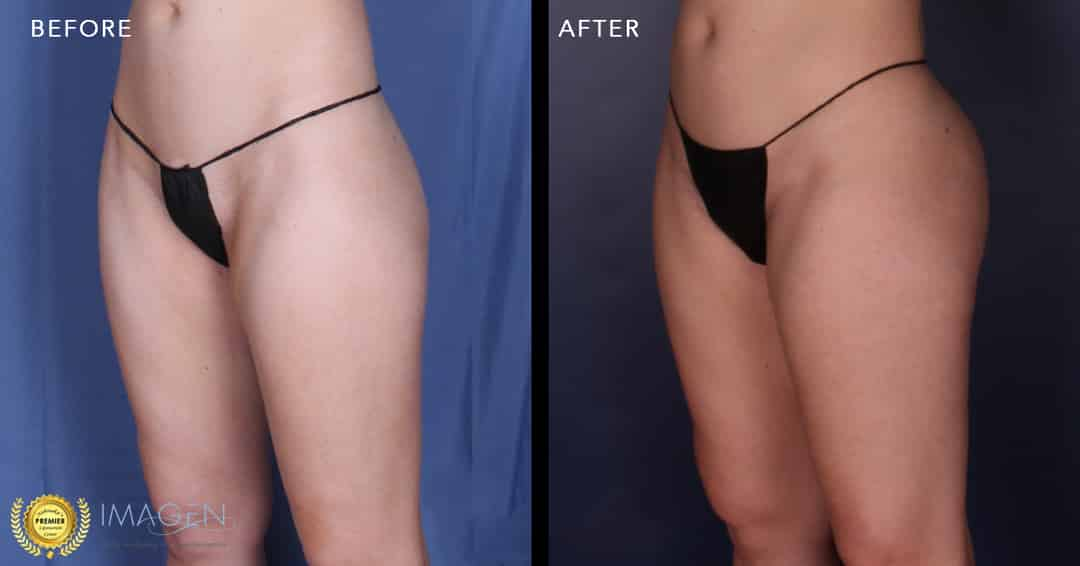 In Omaha: Treatments Exclusively At Imagen Omaha Cosmetic Surgery