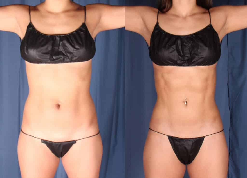 Hi Definition Liposuction