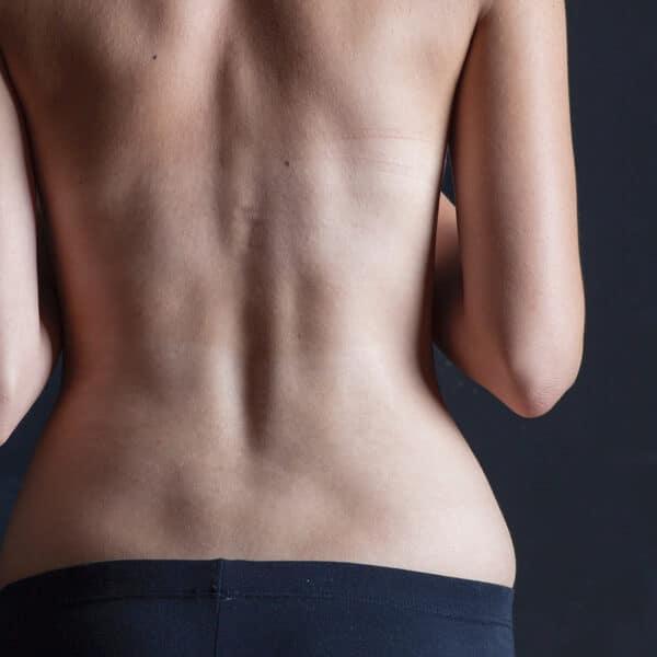 Love Handle Liposuction Omaha
