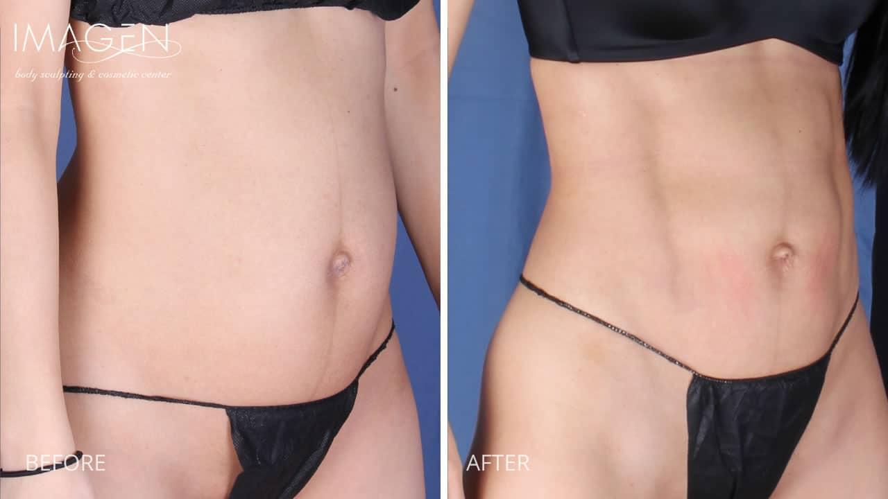 Woman's Hi Definition Liposuction