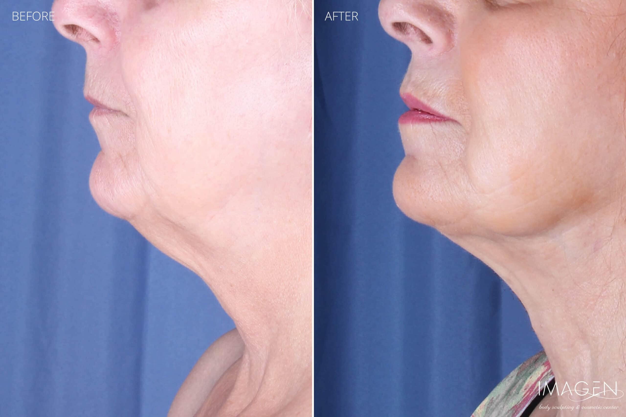 Before and After SmartLipo Chin