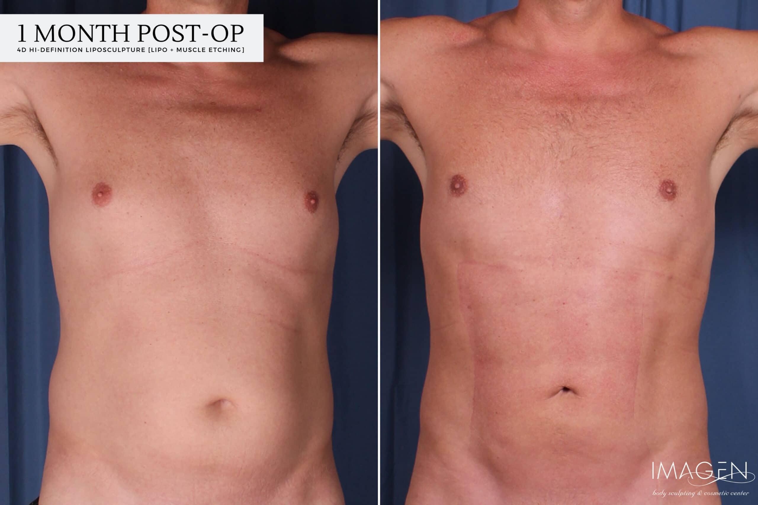 4D Hi-Definition Liposuction