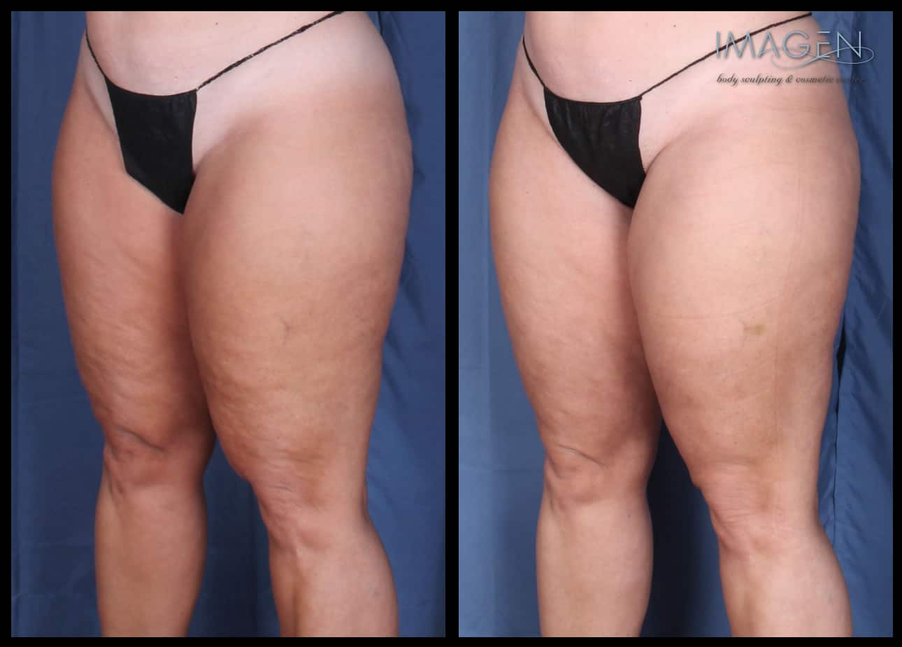 Cellulite Treatment to the Legs